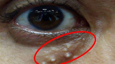 目 の 周り の プツプツ