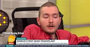 Man who volunteered for world's first head transplant ...