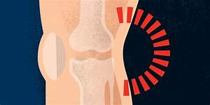 Pain Behind The Knee  Posterior Pain