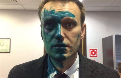 russian opposition leader alexei navalny hospitalized