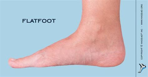 Causes And Symptoms Of Flat Feet  Mass4d® Insoles. Cloud Wall Murals. Devanagari Logo. Parents Signs Of Stroke. Green Infrastructure Signs. Clear Return Address Labels. Postnatal Signs. Order Custom Posters Online. Finger Paint Murals