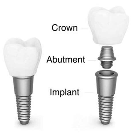 dental implants hawthorne nj hawthorne dental