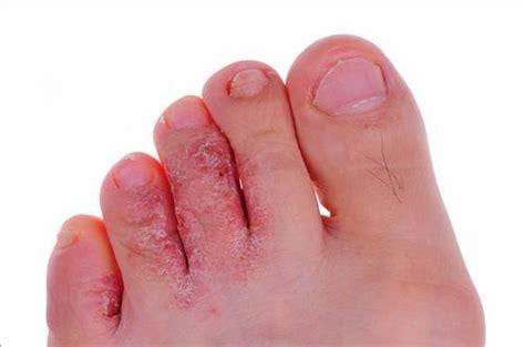 mycose du siege mycoses des pieds notrefamille com