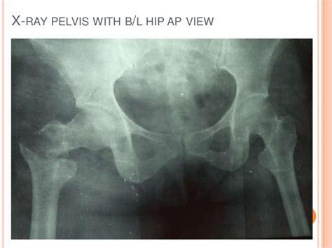 mortality meet nov presentation ray ap