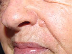 Squamous Cell Skin Cancer On Face