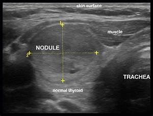 47 best images about Thyroid Nodules on Pinterest ...