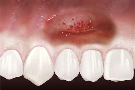 geistlich pharma ag inflamed gum
