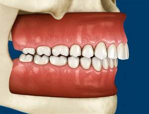 How To Treat Malocclusion - Thehealthinsider Org