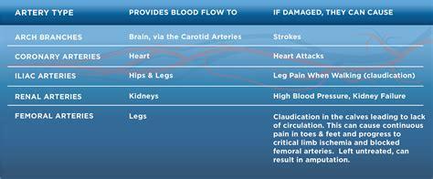 vascular disease vascular cures