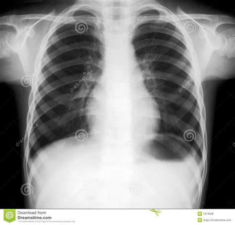 ray lungs thorax human royalty dreamstime