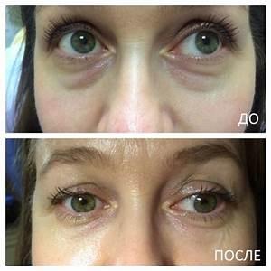 Крем от морщин вокруг глаз после 30 лет какой лучше