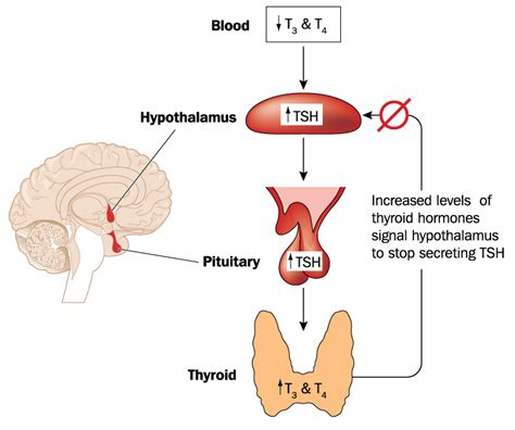 solutions   real root   hypothyroidism