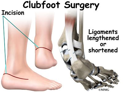Club foot can be corrected. Clubfoot - Midwest Bone and Joint Institute - Illinois