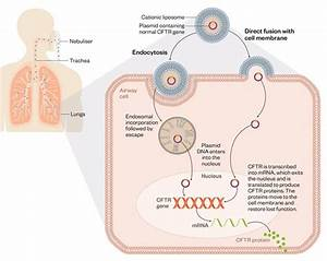 Developing Gene Therapy To Treat Cystic Fibrosis