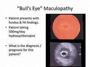 "PPT - ""Bull's Eye"" Maculopathy PowerPoint Presentation ..."