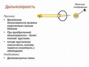 Рак простаты лечение лекарственные препараты