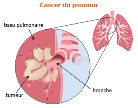 blog de o0lecancerdupoumon0o le cancer du poumon