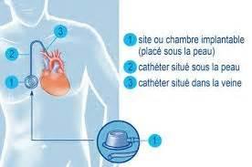 pose de perfusion sur chambre implantable diffusion perfusion suffusion transfusion encyclopédie