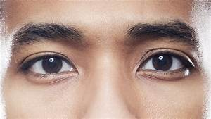 This Man's Photos Capture How Lazy Eye Surgery Changed His ...