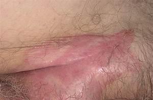 Псориаз лечение в вологде