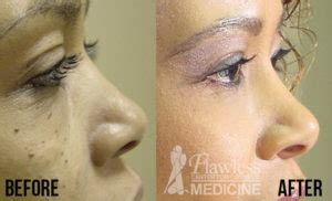scarless mole removal  dr tinsley flawless center