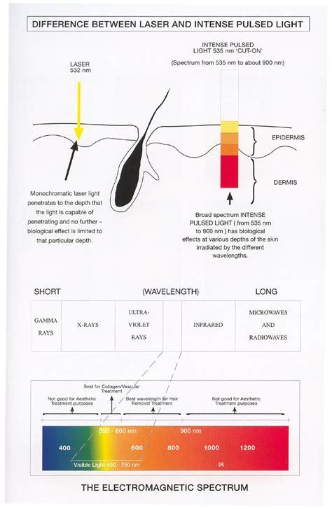 intense pulsed light vs laser