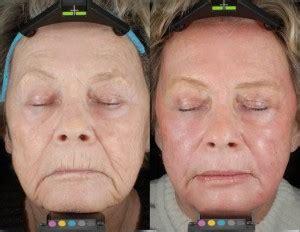 boise s 1 cosmetic sun damage treatments boise s 1 cosmetic blog sun damage treatments