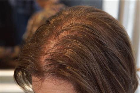 hairstyles  female pattern baldness maatkara design