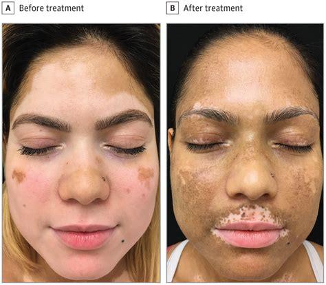 Rapid Repigmentation of Vitiligo Using Tofacitinib Plus