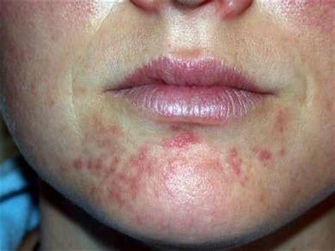 periorale dermatitis um mund und wangen gesundheit