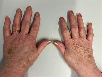 Hand Osteoarthritis Oa Pain Function Associated Msk