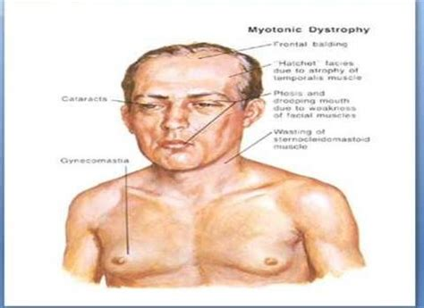 Myotonic Muscular Dystrophy  Interesting Medical. Village Signs Of Stroke. Home Theater Signs. Lamp Post Signs. Fids Signs Of Stroke. Mole Signs. Tension Headache Signs. Flat Foot Signs. Cnc Signs Of Stroke
