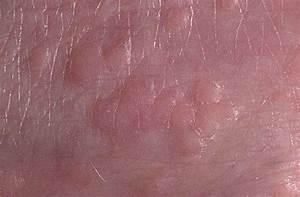 Лечение плоских папилломы