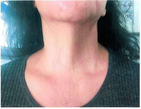 Parathyroid Cyst Masquerading As A Thyroid Nodule