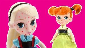 Chicken Pox! Elsa & Anna Toddlers Get Sick & Go To The ...