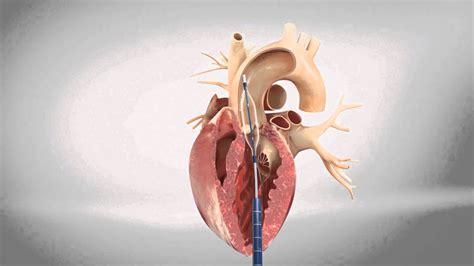 tavi transapical transcatheter aortic heart valve