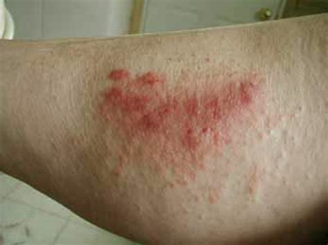 poison rash poison oak rash pictures symptoms causes treatment