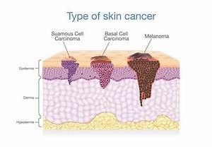 The Importance Of Annual Full Body Skin Exams  U2013 Recognize