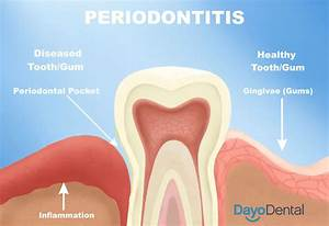 Your Ultimate Guide To Periodontal Disease