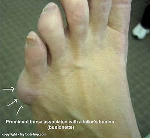 pain relief for bunion surgery