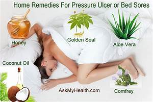 5 best home remedies for pressure sores bed sores or With best treatment for pressure sores