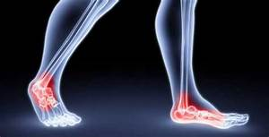 How To Get Rid Of Foot Pain  Ultimate Guide 2020