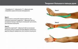 Хондропротекторы при артрозе суставов пальцев рук лечение