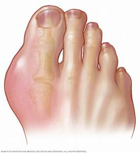 Gout - Symptoms And Causes