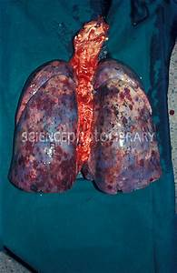 Kaposi's sarcoma of the lungs - Stock Image M112/0320 ...