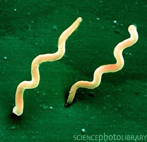 Spirale infektion symptome