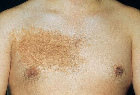 Picture of Skin Diseases and Problems - Becker's Nevus