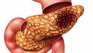 Pancreatic cancer patients should be offered early scans ...