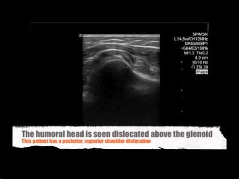 Emergency Ultrasound for Posterior Shoulder dislocations ...
