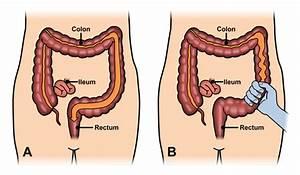 Irritable Bowel Syndrome | ASCRS